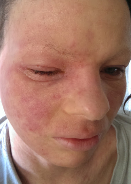 Treatment of facial cellulitis